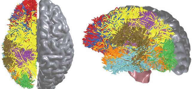 BlueMatter es un algoritmo para medir y mapear de forma no invasiva las conexiones corticales y subcorticales del cerebro.-
