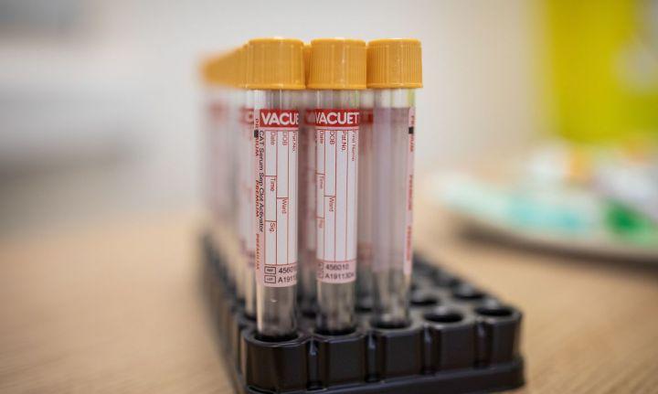 exame coronavirus COVID-19