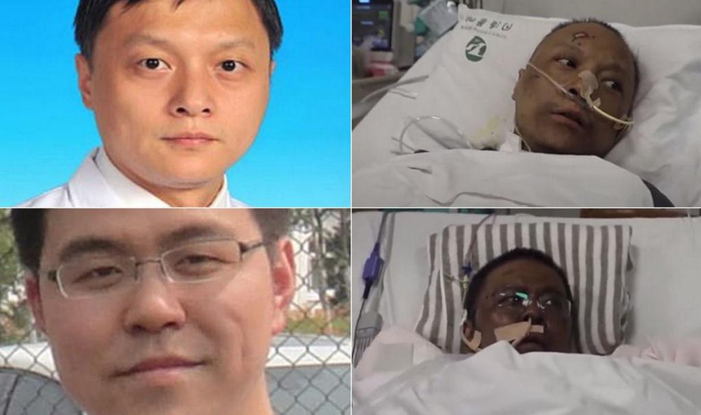 Os estranhos casos de dois pacientes chineses de covid-19 cuja pele escureceu - MDig