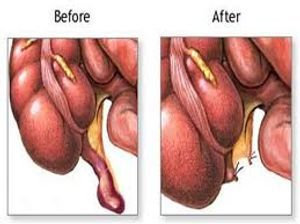 appendicitis surgery treatment noida