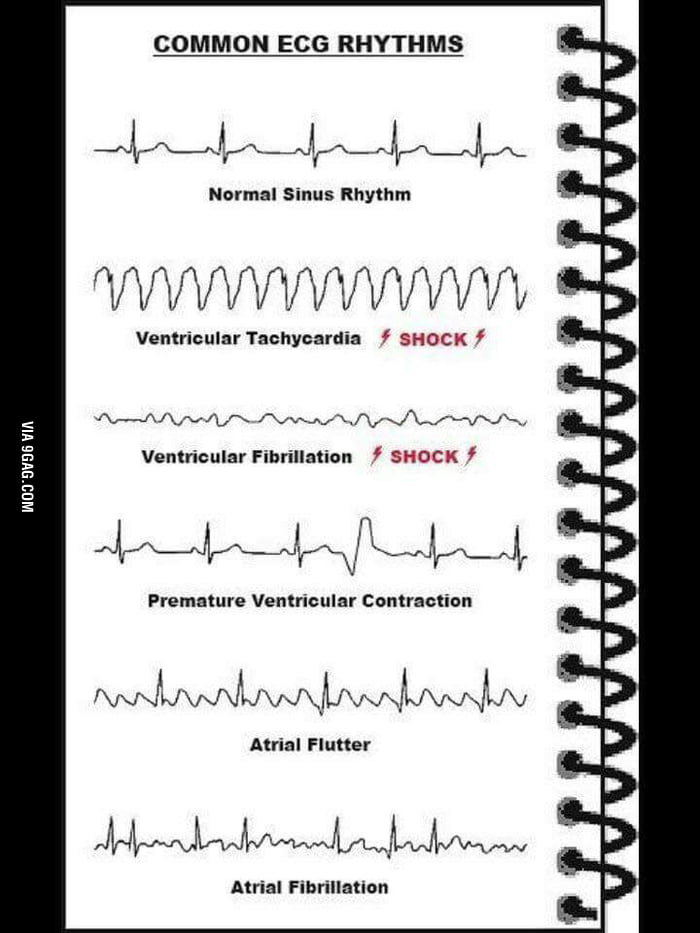 Different heart rate types - 9GAG