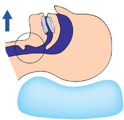 Oscimed SA - Orthèse Mandibulaire Anti-Ronflement Somnofit MAD 23
