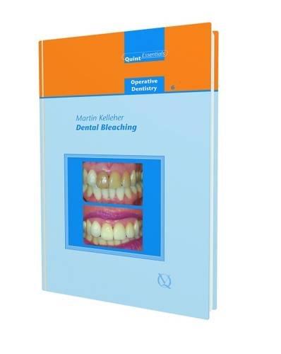 Dental Bleaching (Quintessentials of Dental Practice: Operative Dentistry 6)