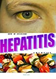 HEPATITIS: HOW TO OVERCOME HEPATITIS (A, B, C, D, E, AND X).
