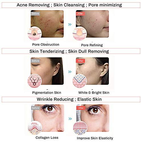 LED masque facial de traitement, Acne traitement Masque, Anti-âge masque, Masque de Luminothérapie LED Photon Therapy, 3 couleurs faciales t... 29