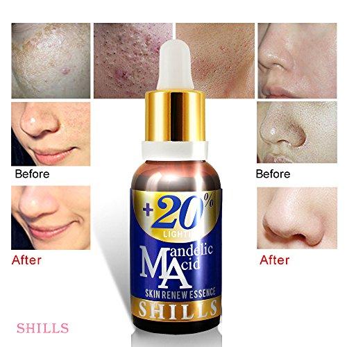 SHILLS+20% Mandelic Acid Skin Renew Essence, Vitamina E y ácido Mandelico,Remueve Acne, Arrrugas,...