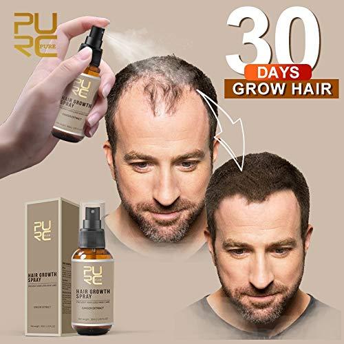PURC 2019 New Hair Growth Spray Fast Grow Hair Hair LossTreatment Preventing Hair Loss Hair Care 30ml