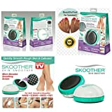 OnlineWorld Skoother Skin Smoother and Callus Remover for - Knees - Feet - Elbows - Hands and Quickly Smooth Rough Skin Calluses