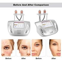 Facial-MachineProfessional-Skin-Lifting-Tightening-Anti-Aging-Wrinkle-Removal-Face-Tightening-Lifting-Beauty-Device-Facial-Care-Beauty-Tool-Skin-RejuvenationUS