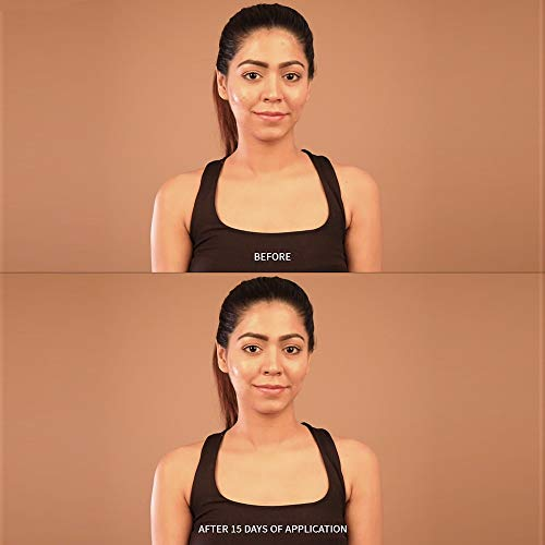 41dkkvuQO6L Tjori Acne Spot Removing Cinnamon Face Gel 50 gm