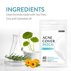 Avarelle Acne Pimple Patch (40 Count) Absorbing Hydrocolloid Spot Treatment with Tea Tree Oil