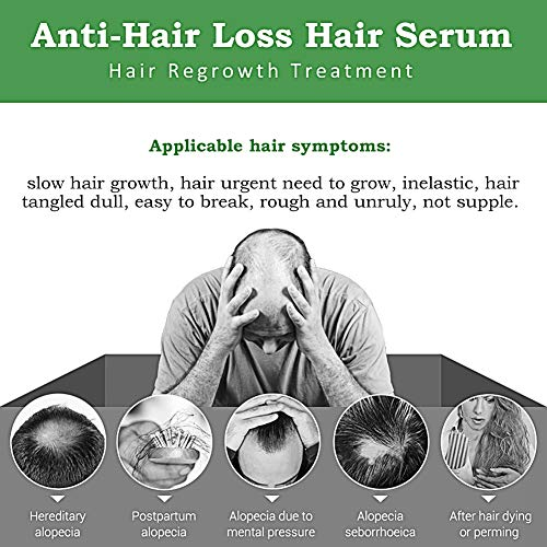 Hair Growth Serum,Hair Loss &Hair Thinning Treatment,Hair Serum,Stimulates New Hair Growth, Promotes Thicker, Fuller and Faster Growing Hair
