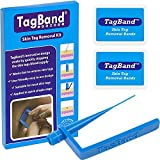 TagBand Skin Tag Removal Device for Medium to Large Skin Tags (Original Version)