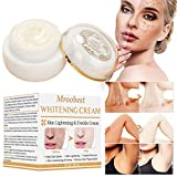 Whitening Cream for Face,Dark Spot Corrector, Brightening Cream, Dark Spot Corrector for Face,Spot Cream for Face, Freckle Fade Removal,Age Spots for Face and Body