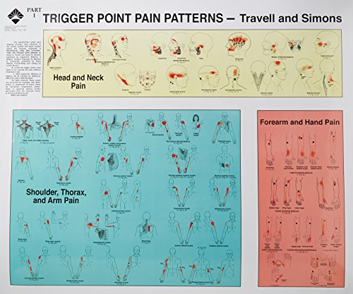 Trigger Points of Pain: Wall Charts (Set of 2)