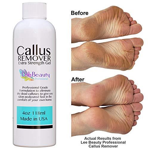Best Callus Remover.Callus Eliminator,Liquid & Gel For Corn And Callus On Feet. Professional Grade