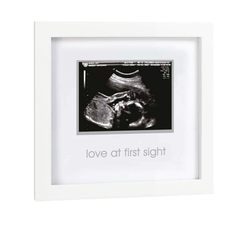 Ultrasound Picture Frame Target Allframes5