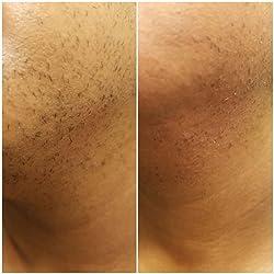 Braun Silk-épil 9 9-579 Women's Epilator, Electric Hair Removal, Wet & Dry, with Electric Razor - Bonus Edition (Packaging May Vary) Customer Image