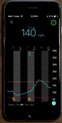 Medtronic Launching Stand-Alone CGM: Guardian Connect