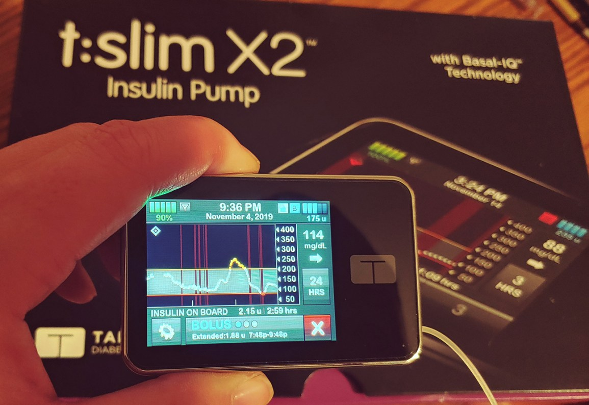 diabetes en tándem glisiera