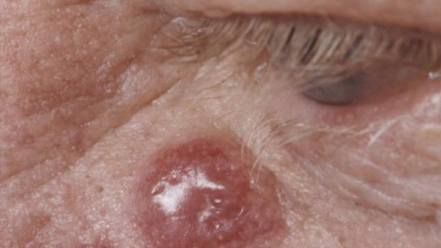 Skin Cancer Rash Itchiness And Symptoms