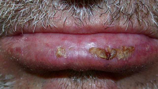 Skin Cancer Rash: Itchiness and Symptoms