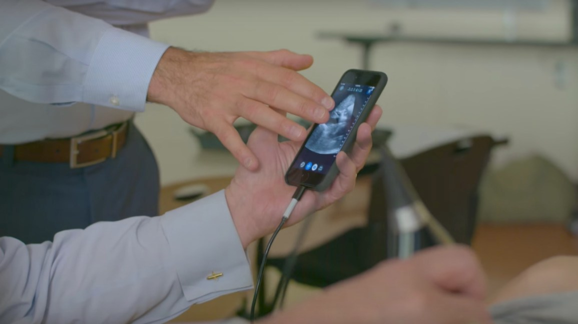 Butterfly IQ: An iPhone Ultrasound Saved This Doctor's Life
