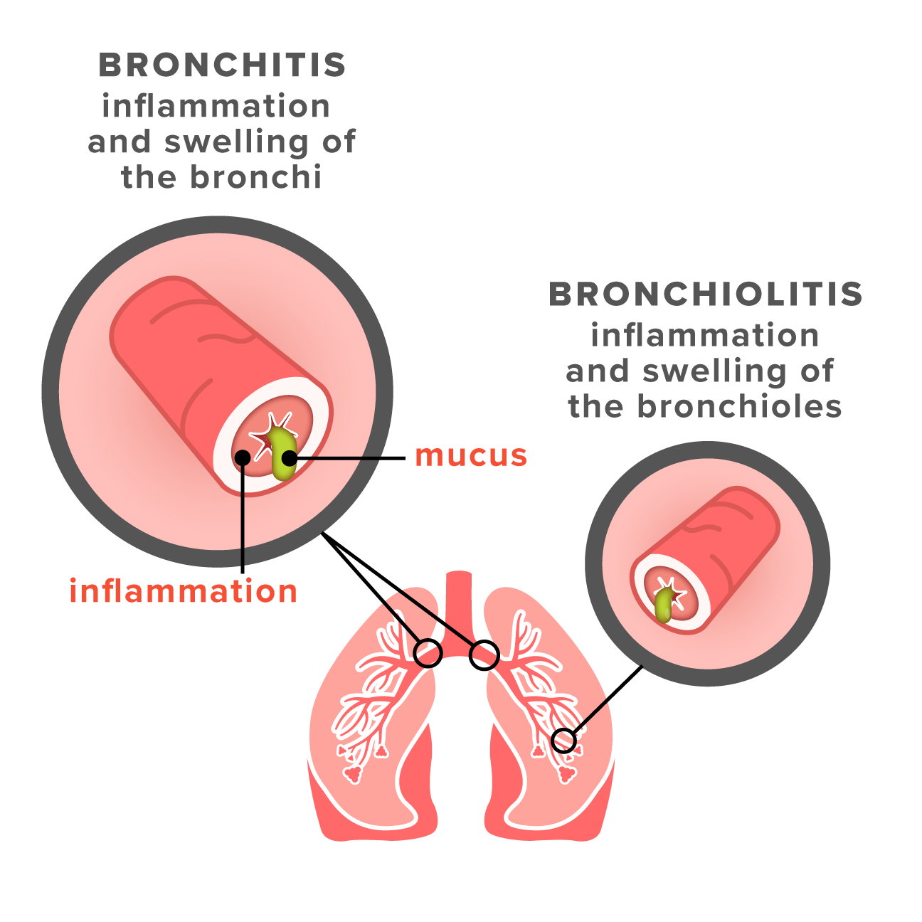 bronchiolitis vs bronchitis