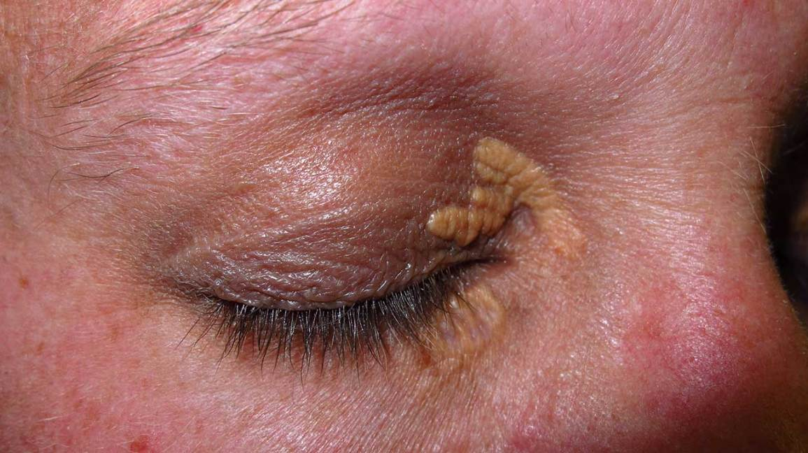 Xanthelasma: Treatment, Causes, Photo, and More