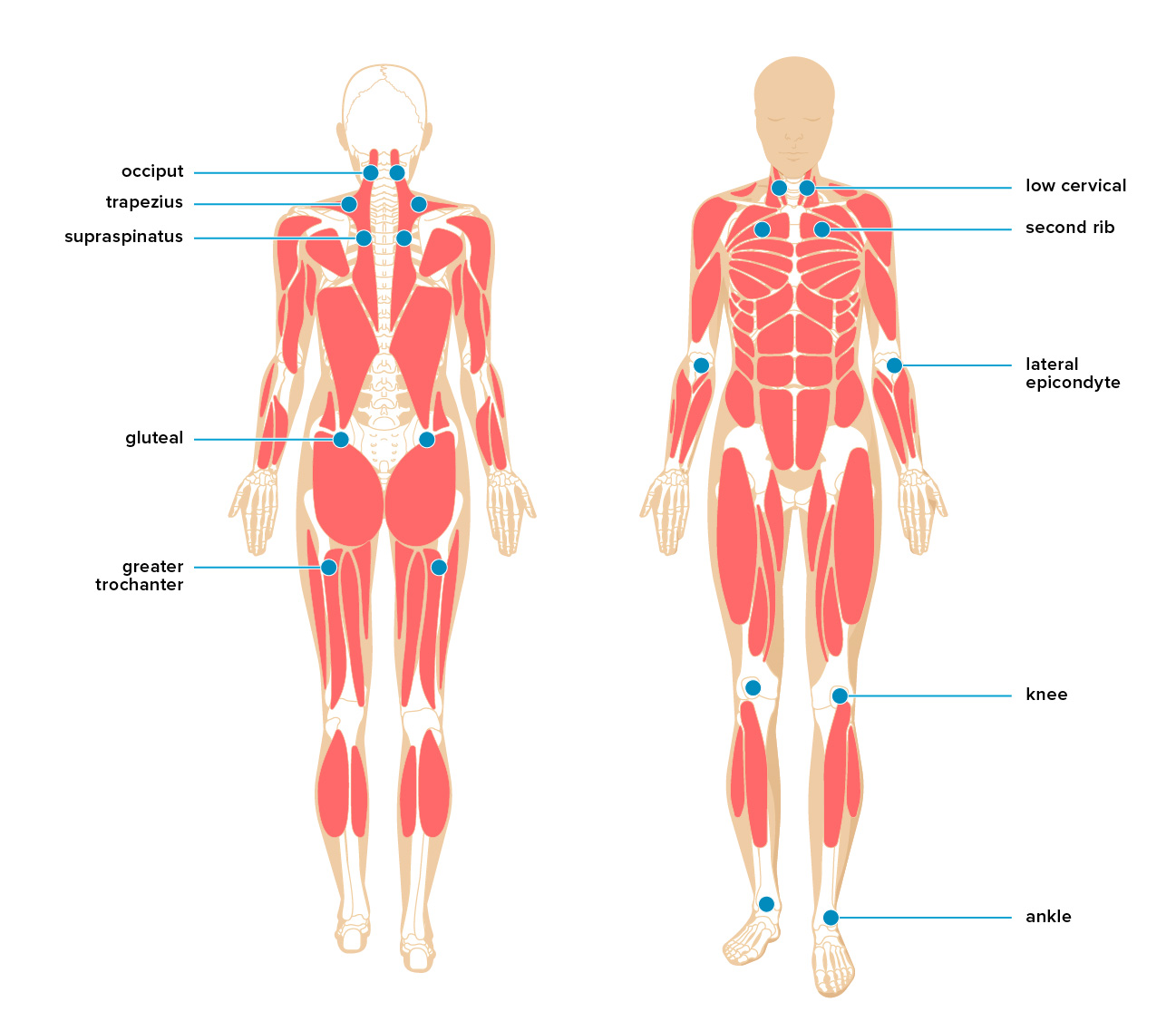 myofascial pain treatment, symptoms, causes, and more Fibromyalgia Pain Diagram