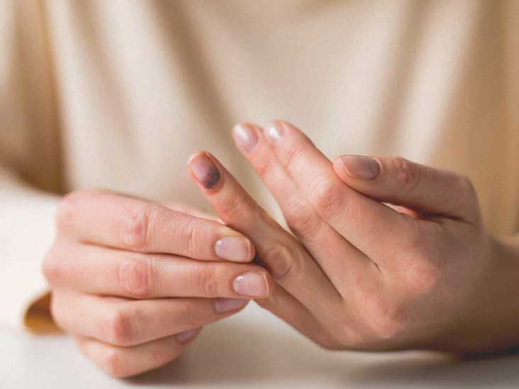 Nail Bed Injury Types, Causes, and Treatments