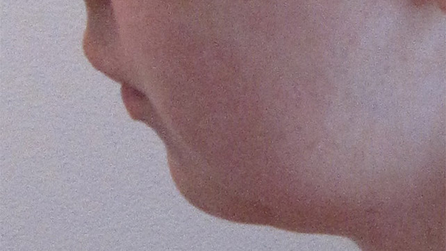 Receding Chin: Pictures, Causes, Exercises, and Surgery
