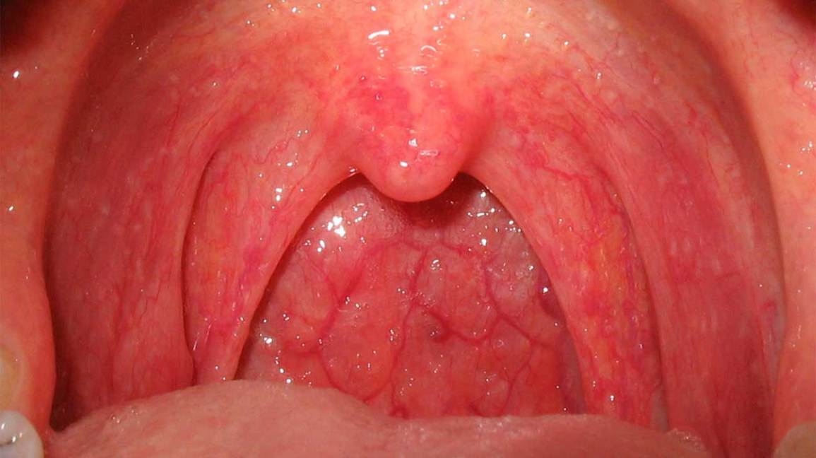 Throat cancer from hpv treatment. Hpv and throat cancer link, Hpv and throat cancer risk