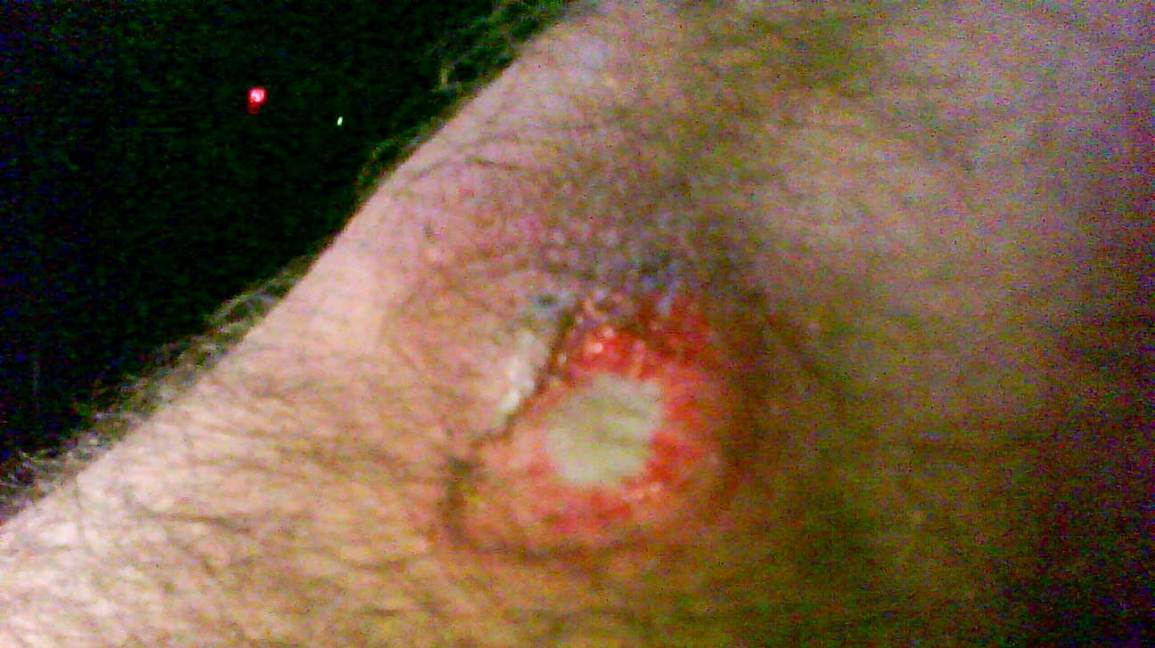 Rug Burn: Scar, On Back, Picture, Infected, and More