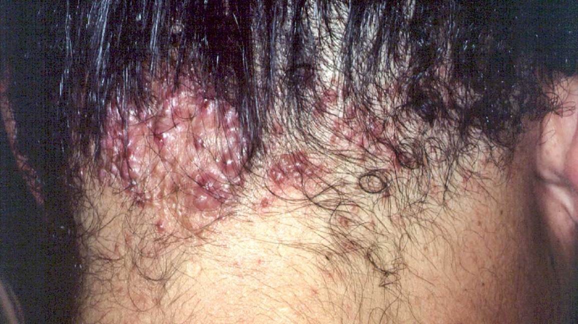 Acne In Hair >> Acne Keloidalis Nuchae Causes Shampoo Creams Other Treatments
