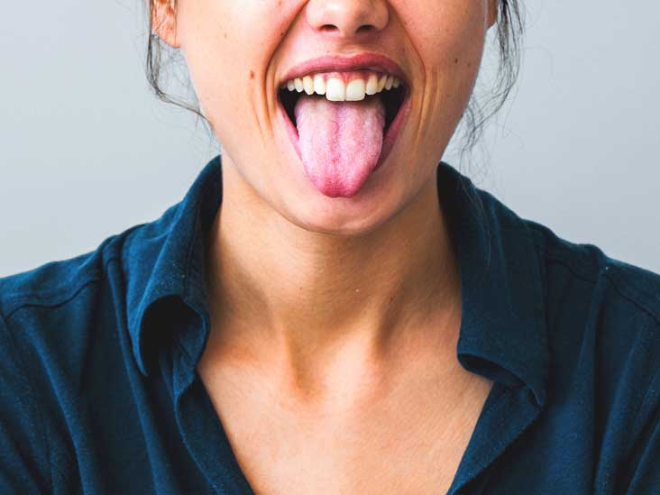 Bleeding Tongue: Treatment, Causes, and More
