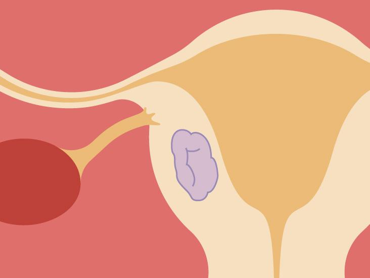 Pedunculated Fibroid: Symptoms, Diagnosis and Treatment