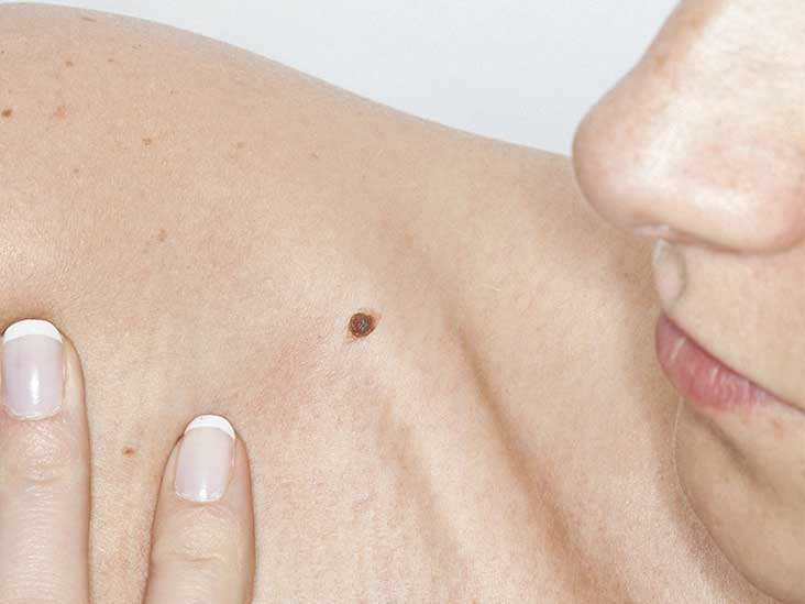 Itchy Skin as a Cancer Warning Sign
