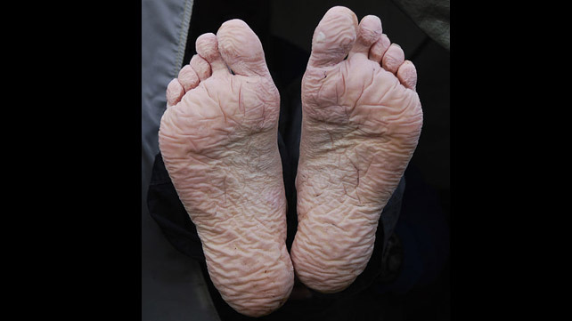 Trench Foot: Symptoms, Causes, Pictures, and Treatment