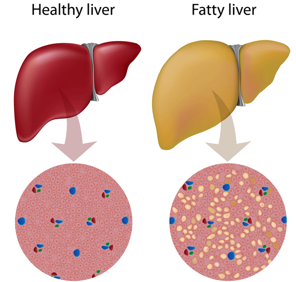 Fatty Liver Illustration