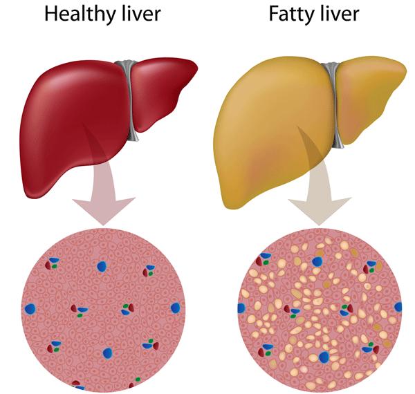 higado graso sintomas tratamiento y dieta cetosisgenica