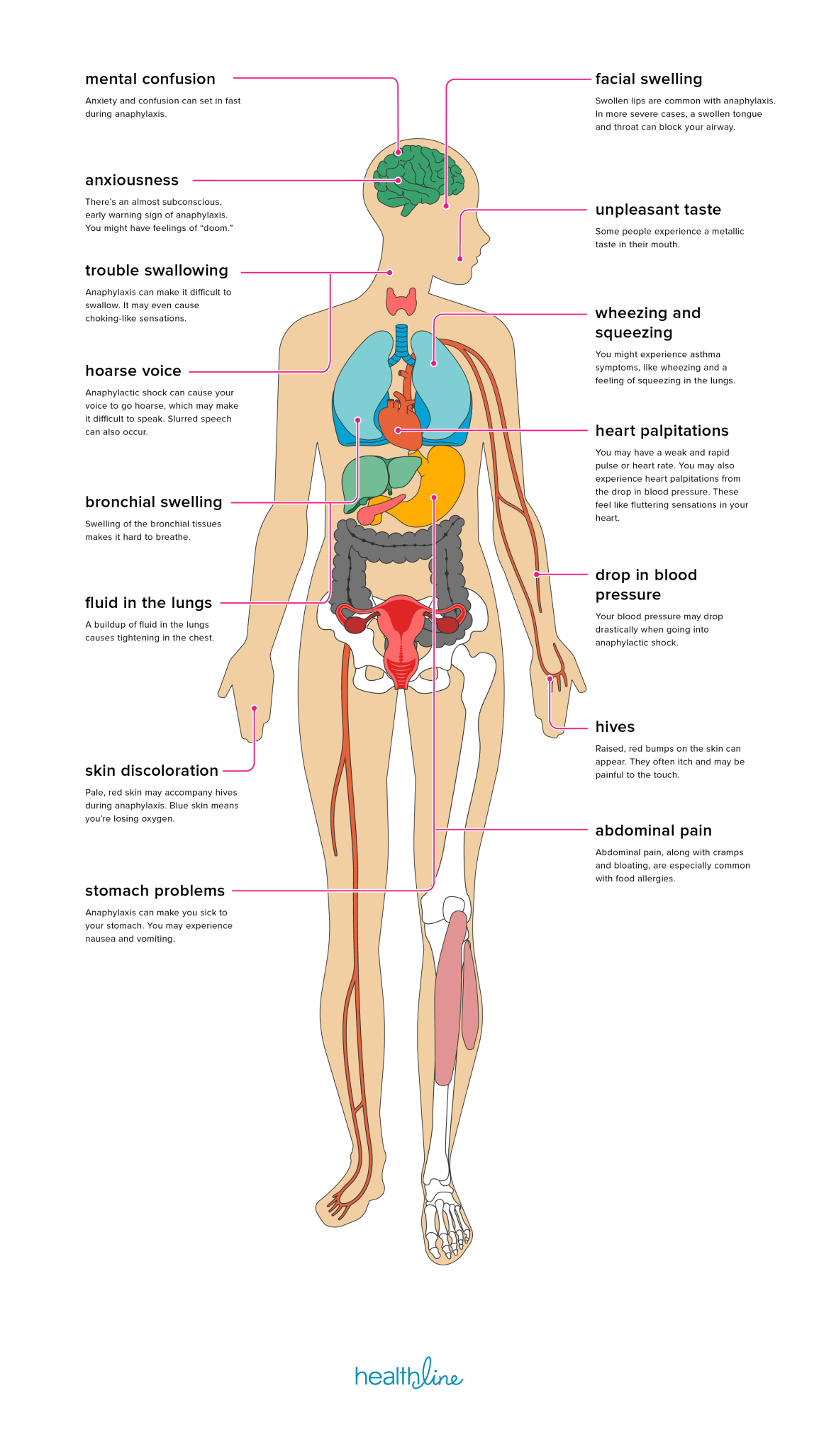 15 Effects of Anaphylaxis on the Body