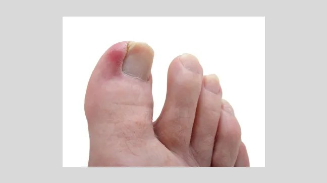 Ingrown Toenails: Causes, Symptoms, and Diagnosis