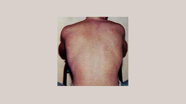 Phenomenal Dengue Fever Symptoms Complications Diagnosis Ibusinesslaw Wood Chair Design Ideas Ibusinesslaworg