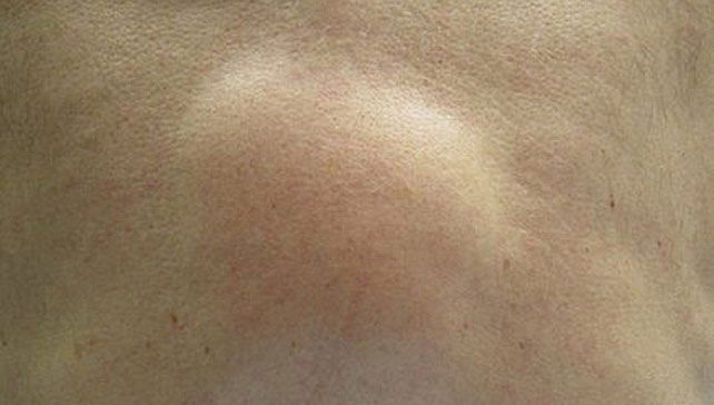 Lipoma Skin Lumps Causes Diagnosis And Treatments