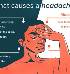 headache relief diagram [ 5400 x 3082 Pixel ]