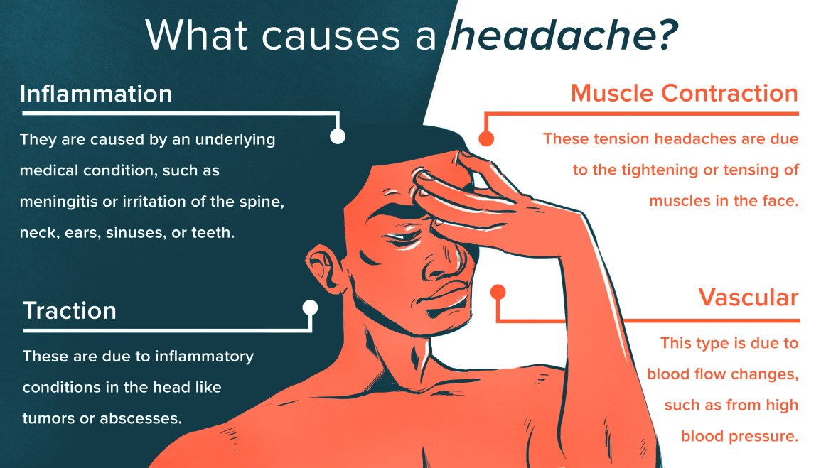 Try These 9 Simple Headache Hacks for Fast Relief