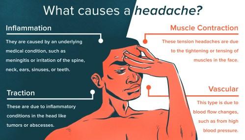 small resolution of headache relief diagram