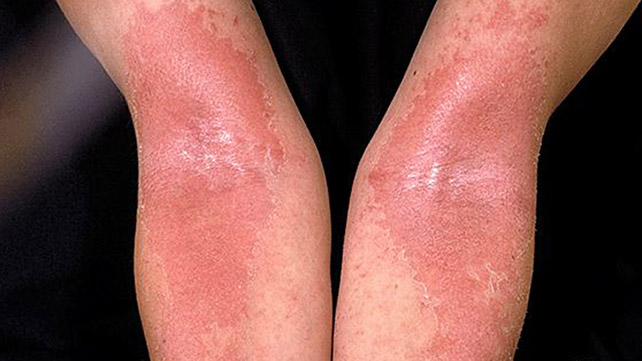 """Image result for eczema photo"""""""