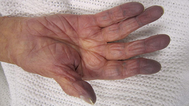 Gray Skin Causes And Treatment
